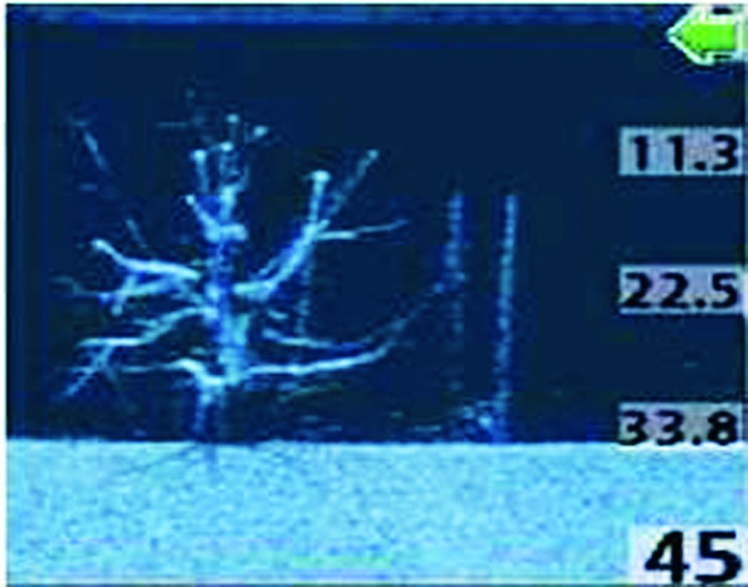 Der gleiche Baum im digitalen Gerät. Mit entsprechender Übung ist der Baum bereits als Struktur erkennbar. Foto: T. Schlageter