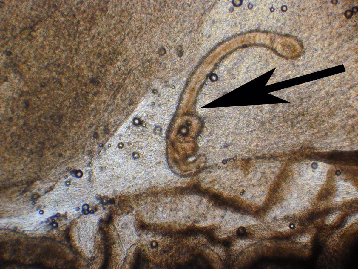 Im Verdauungssystem einer Brasse befinden sich Würmer. Foto: Christophe Barla